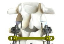 Image of Kahtnu Surgical's Talkeetna pedicle screw system provides new technology for spine surgeons.