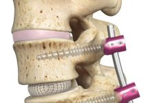 Spineology OptiMesh® Expandable Interbody Fusion System