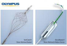 ERCP Stone Management Devices