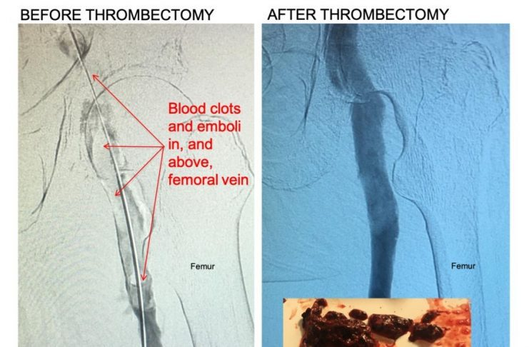 Control 11F Mechanical Thrombectomy System