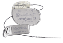 FDA, InterStim ii, InterStim Micro sacral neuromodulation