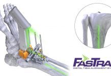 Paragon 28, Conducts the First Total Ankle Joint Replacement Surgery Utilizing Laser Alignment Technology